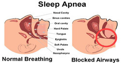 Sleep Apnea Study Test