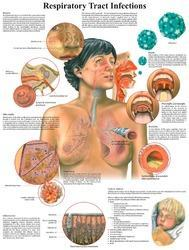 Homeopathic Medicine Charts