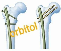 Proximal Femoral Interlocking Nail (PFN)