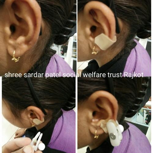 Ear Keloid Clip Ear Keloid Clip With Silicone Gel Sheet