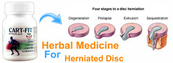 Herbal Medicine for Herniated Disc