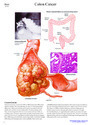 Pathology Charts