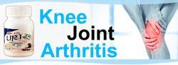 Knee Joint Arthritis