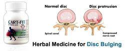 Herbal Medicine For Disc Bulging