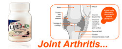 Joint Arthritis Capsule