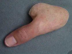 Thumb Silicone Prosthesis
