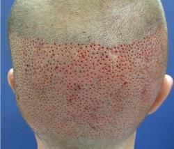 Follicle Hair Transplant