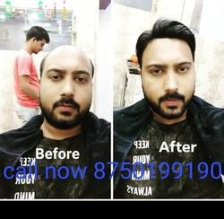 Hair Patch, Hair Patch Services
