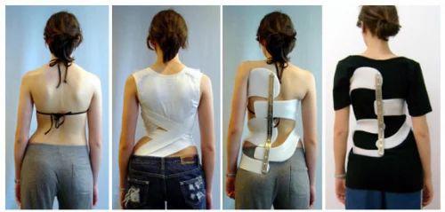 Spinal Orthotic Program