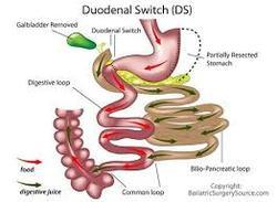 Duodenal Switch Weight Loss Surgery In Civil Lines Nagpur Travcure