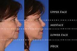 Neck and Face Lift Cosmetic Surgery