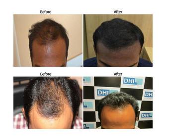 Hair Loss Treatment Service In New Delhi Safdarjung Enclave By
