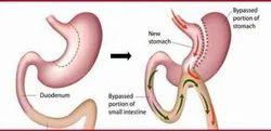 Biliopancreatic Diversion Surgery