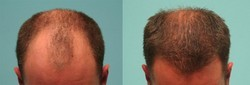 Follicular Hair Transplant