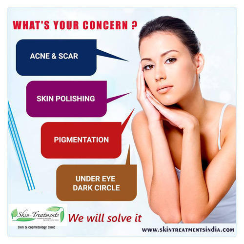 There Acne facial treatments