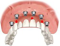 Dental Implant Prosthesis