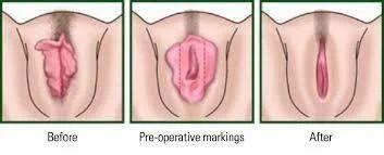 Pics of fat vagina