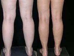 Arms & Calves Liposuction