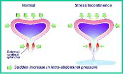 Incontinence Treatment