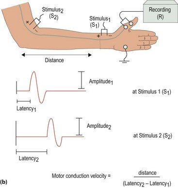 Electromyogram (EMG) Test & Nerve Conduction Study (NCS)