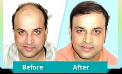Hair Replacements Services