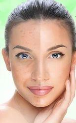 Acne Facial Peel