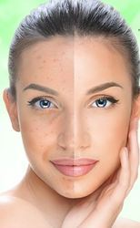 Acne Miracle Treatment