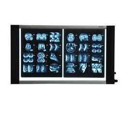 Medical X-Ray Double Film Viewer