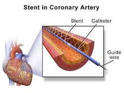 Angioplasty with ONE Medicated Stent Cardiology Surgery