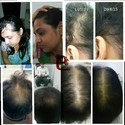 Hair Fall Treatment Service