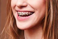 Orthodontic Treatment Service