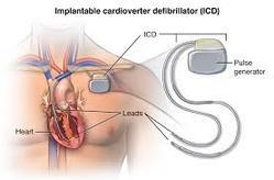 Biventricular Pacing & ICD Cardiology Surgery