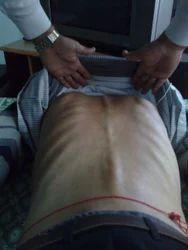 Chronic Backache