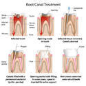 Root Canal Treatmnt