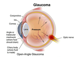 Glaucoma Consultancy Services