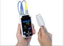 Bluetooth Pulse Oximeter