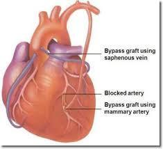 CABG Surgery in India