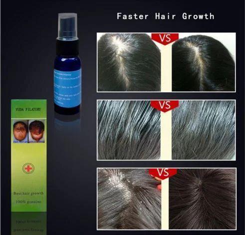 b58fbe7ef5d Alopecia Pilatory Extra Strength Anti Hair Loss Serum - Impex ...