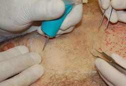 Direct BHT Hair Transplant