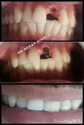 Dental Implantologist