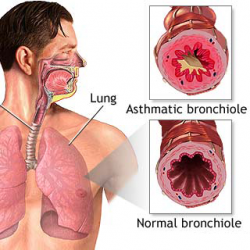 Homeopathy Clinic for Asthma