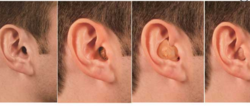 Speech Therapy Rehabilitation Hearing Testing