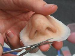 Silicone Nose Prosthesis.