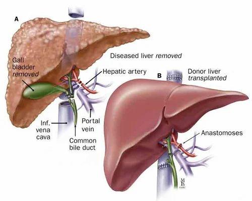 Liver Transplant Surgery in New Delhi, Rohini Sector 3 by M2Y Medi ...