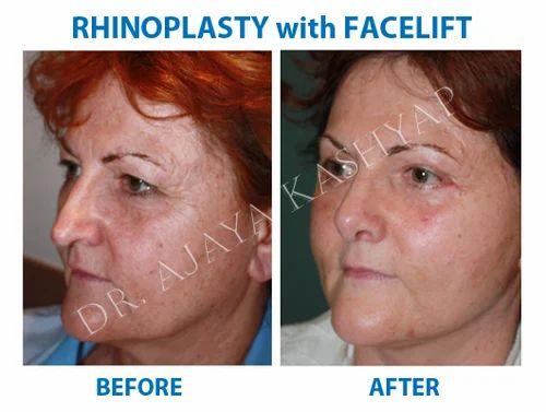 Rhinoplasty Nose Surgery In Vasant Vihar Delhi Id 12597950548