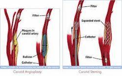 Carotid Angioplasty Cardiology Surgery