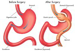 Revision Gastric Bypass Surgery