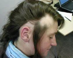 Hair Treatment For Hair Loss