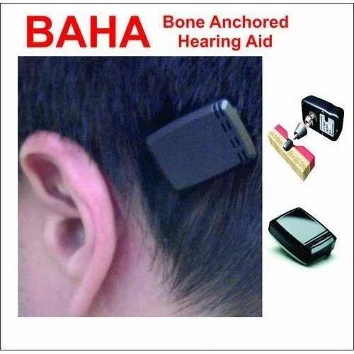 Bone Conduction Hearing Aids - Bone Anchored Hearing Aids ...