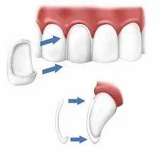 Porcelain Dental Veneers Treatment